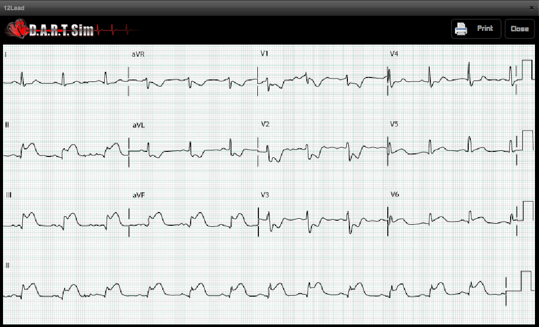 The DART Simulator for ACLS Instructors
