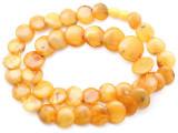 Genuine Butterscotch Amber Round Tabular Beads 12-20mm (AB92)