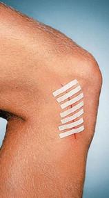 Skin Closure Strip Suture Strip¨ 1/4 X 3 Inch Nonwoven Material Flexible Strip Tan TS3101 Pack/1