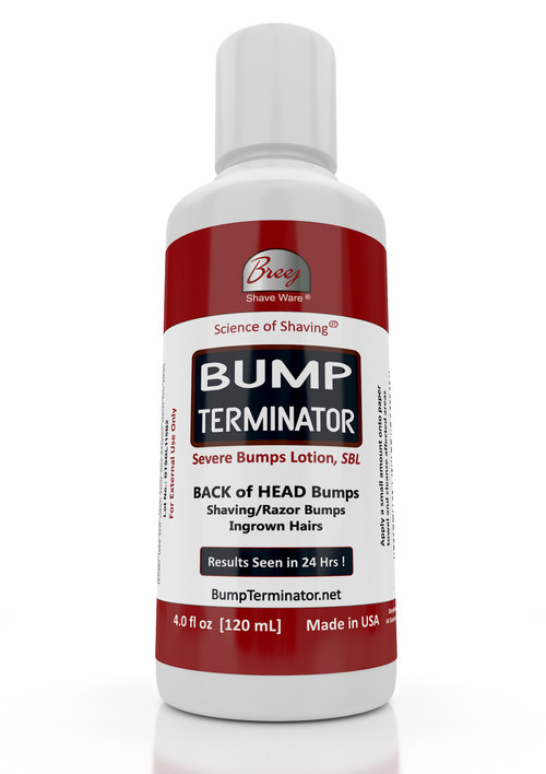 "For Fast Relief of Severe Shaving Bumps, Ingrown Hairs and Back of the Head Bumps  BUMP TERMINATOR Severe Bumps Lotion is a Fast Acting formula with very effective natural healing oils - lavender, patchouli, tea tree; extracts of gotu kola and willowbark plus glycolic acid, salicylic acid and alpha bisabolol. This advanced and Fast Acting BUMP TERMINATOR Severe Bumps Lotion is formulated with BREEJ Advanced Anti Bump Phytoplex for the fast relief of Back of the Head Bumps.  DIRECTIONS FOR USE  Gently Cleanse Affected Areas With The Bump Terminator Severe Bumps Lotion Using ""Bounty"" Type Paper Towel.  NOTE: Product Is For Severe Shaving Bumps, Ingrown Hairs and Back of the Head Bumps.  For People With Sensitive Skin We Offer Our BUMP ZAPPER Severe Bumps Kit.  Alternatively, You Can Dilute The BUMP TERMINATOR Severe Bumps Lotion With An Equal Volume Of Water At Time Of Use  CAUTION: Discontinue use if irritation occurs"