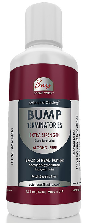 BUMP TERMINATOR ALCOHOL FREE Extra Strength Severe Bumps Lotion for Severe Back of Head Bumps is a NON-STINGING and NON-IRRITATING Fast Acting, formulated with very effective natural extracts - Centella Asiatica , Cucumis Sativus, Harpagophytum Procumbens, Lagerstroemia Speciosa, Forsythia Suspensa, Saururus Chinensis, Morus Alba, Alteromonas Ferment, Vincetoxicum Atratum, Eperua Falcata, Yucca Schidigera. This advanced and fast acting Bump Terminator ALCOHOL FREE Extra Strength Severe Bumps Lotion is formulated with BREEJ advanced anti bump alcohol free phytoplex for the fast relief of Severe Back of Head Bumps & Ingrown Hairs