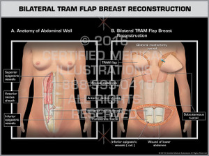 Exhibit of Bilateral TRAM Flap Breast Reconstruction 1