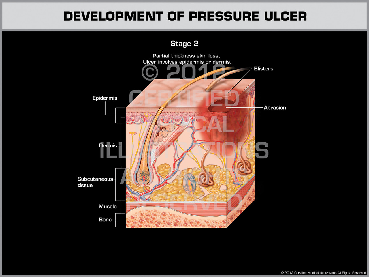 Development Of Pressure Ulcer Stage 2