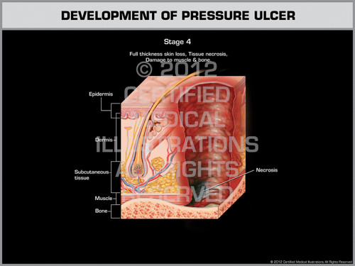 Exhibit of Development of Pressure Ulcer - Stage 4
