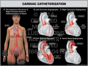 Exhibit of Cardiac Catheterization - Female