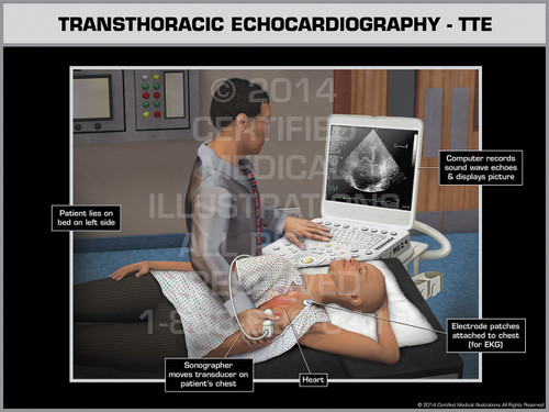 Exhibit of Transthoracic Echocardiography- TTE Female