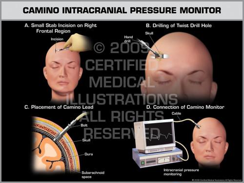 Exhibit of Camino Intracranial Pressure Monitor Female