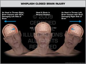 Exhibit of Whiplash Closed Brain Injury Male