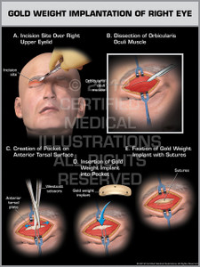 Exhibit of Gold Weight Implantation of Right Eye