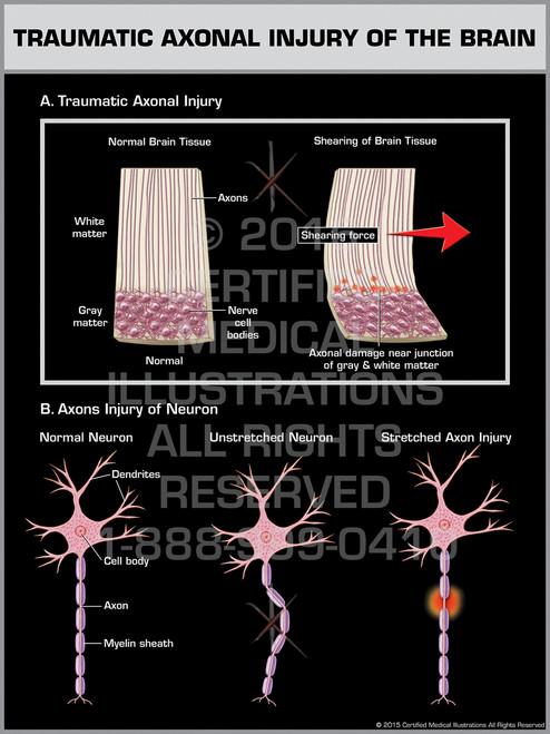 Exhibit of Traumatic Axonal Injury of the Brain