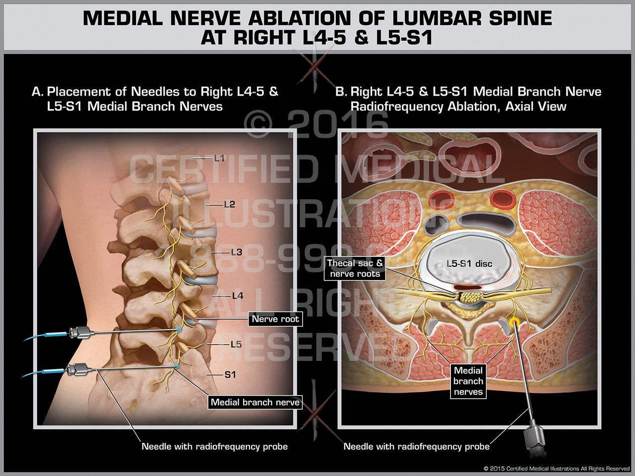 Medial Nerve Ablation Of Lumbar Spine At Right L4 5 L5 S1
