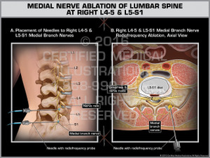 Exhibit of Medial Nerve Ablation of Lumbar Spine at Right L4-5 & L5-S1