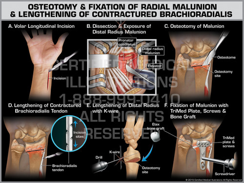 Exhibit of Osteotomy & Fixation of Radial Malunion & Lengthening of Contractured Brachioradialis - Print Quality Instant Download