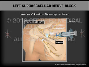 Animation of Left Suprascapular Nerve Block - Medical Animation