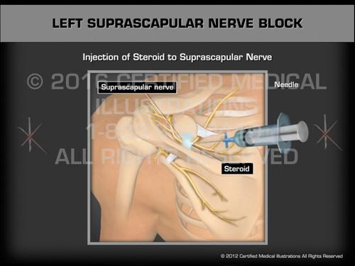 Animation of Left Suprascapular Nerve Block - Medical Animation