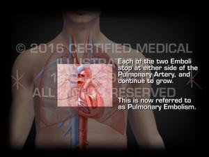 Animation of Formation of Pulmonary Embolism - Medical Animation