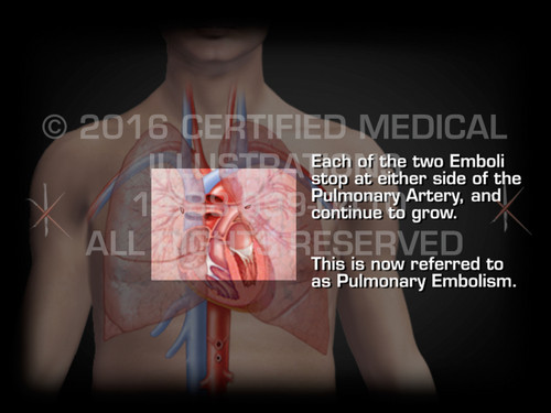 Animation of Formation of Pulmonary Embolism - Medical Animation