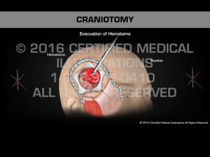 Animation of Craniotomy - Medical Animation
