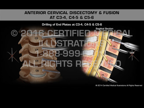 Animation of Anterior Cervical Discectomy & Fusion at C3-4, C4-5 & C5-6 - Medical Animation