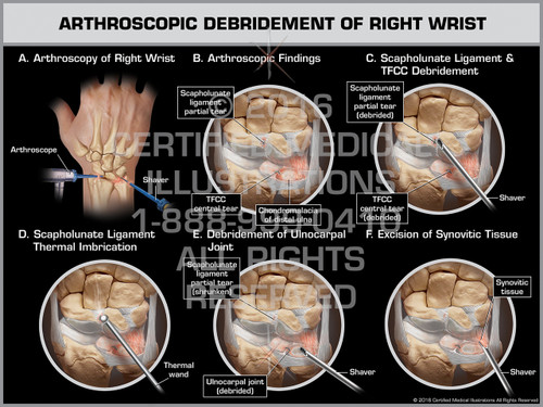 Exhibit of Arthroscopic Debridement of Right Wrist - Print Quality Instant Download