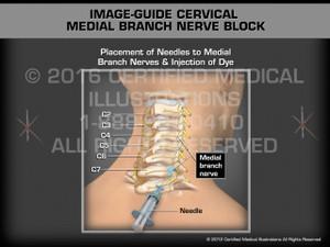 Animation of Image-Guide Cervical Medial Branch Nerve Block - Medical Animation