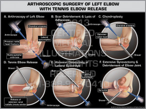 Arthroscopic Surgery of Left Elbow with Tennis Elbow Release