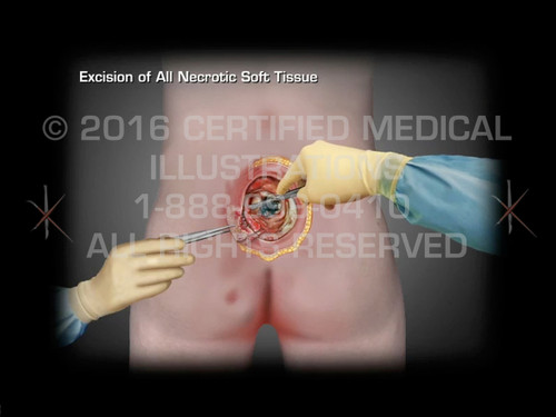 Animation of Stages & Surgery of Sacral Pressure Ulcer - Medical Animation