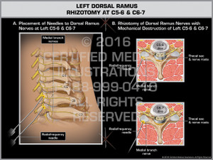 Exhibit of Left Dorsal Ramus Rhizotomy at C5-6 & C6-7 - Print Quality Instant Download