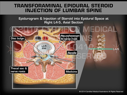 Animation of Transforaminal Epidural Steroid Injection of Lumbar Spine - Medical Animation (Female)
