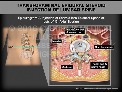 Animation of Transforaminal Epidural Steroid Injection of Lumbar Spine - Medical Animation (male)