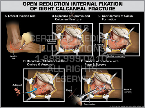 Exhibit of Open Reduction Internal Fixation of Right Calcaneal Fracture - Print Quality Instant Download