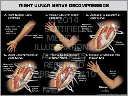 Right Ulnar Nerve Decompression
