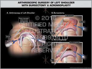 Exhibit of Arthroscopic Surgery of Left Shoulder with Bursectomy & Acromioplasty - Print Quality Instant Download