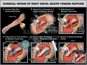 Surgical Repair of Right Distal Biceps Tendon Rupture