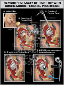 Exhibit of Hemiarthroplasty of Right Hip with Austin-Moore Femoral Prosthesis