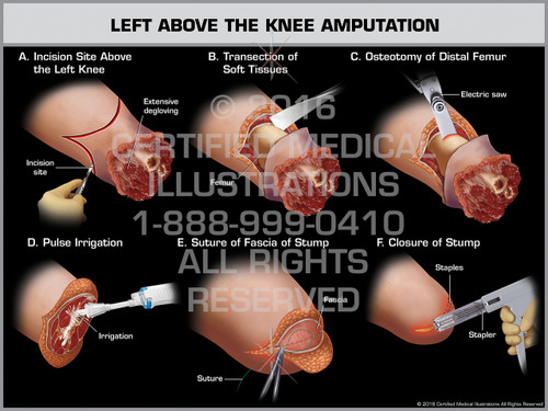 Exhibit of Left Above the Knee Amputation - Print Quality Instant Download