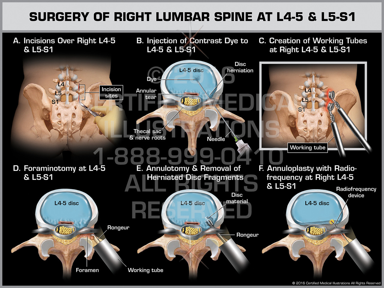 Surgery of Right Lumbar Spine at L4-5 & L5-S1 - Print Quality Instant  Download