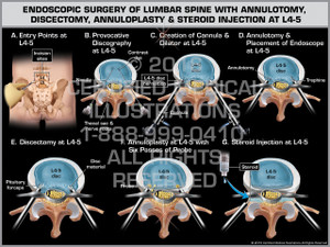 Exhibit of Endoscopic Surgery of Lumbar Spine with Annulotomy, Discectomy, Annuloplasty & Steroid Injection at L4-5 - Print Quality Instant Download