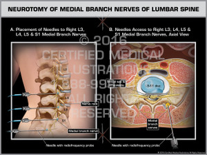 Exhibit of Neurotomy of Medial Branch Nerves of Lumbar Spine