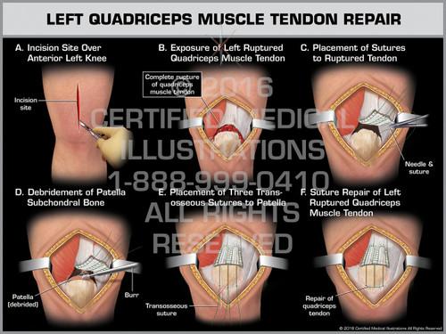 Exhibit of Left Quadriceps Muscle Tendon Repair