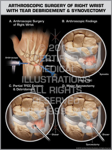 Exhibit of Arthroscopic Surgery of Right Wrist with Tear Debridement & Synovectomy