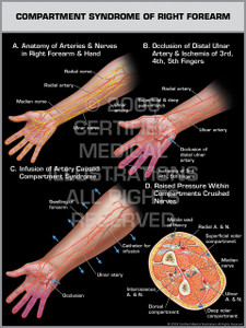 Compartment Syndrome of Right Forearm 1