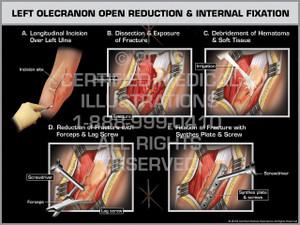 Exhibit of Left Olecranon Open Reduction & Internal Fixation - Print Quality Instant Download