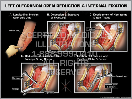 Exhibit of Left Olecranon Open Reduction & Internal Fixation - Print Quality Instant Download