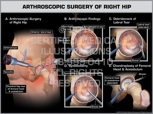 Exhibit of Arthroscopic Surgery of Right Hip - Print Quality Instant Download