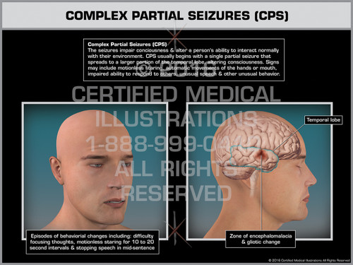 Exhibit of Complex Partial Seizures (CPS)