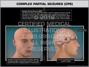 Exhibit of Complex Partial Seizures (CPS) - Print Quality Instant Download