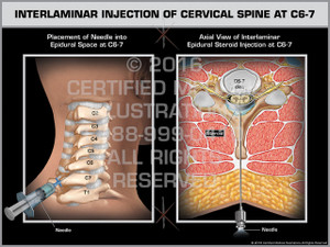 Exhibit of Interlaminar Injection of Cervical Spine at C6-7
