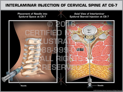 Exhibit of Interlaminar Injection of Cervical Spine at C6-7 - Print Quality Instant Download
