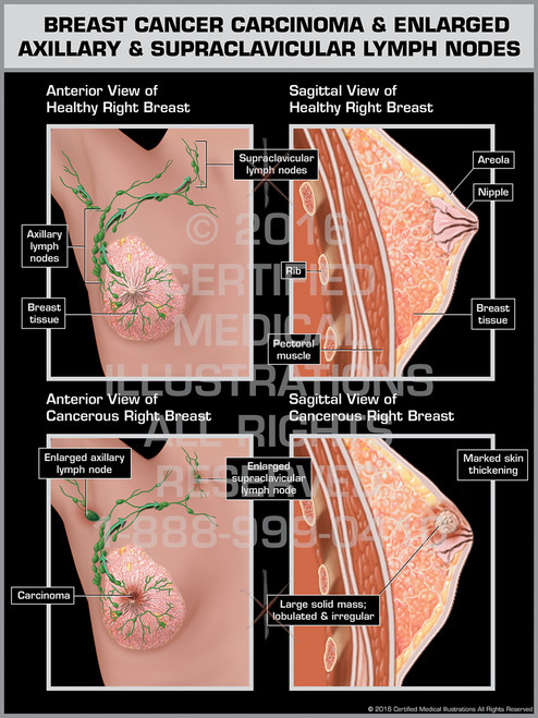 Exhibit of Breast Cancer Carcinoma & Englarged Axillary & Supraclavicular Lymph Nodes - Print Quality Instant Download